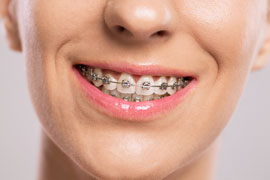 facts about braces dentist Sugar Hill